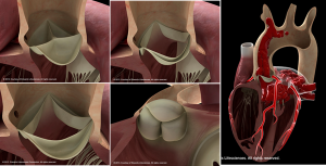 Preview Basic Aortic Pictures